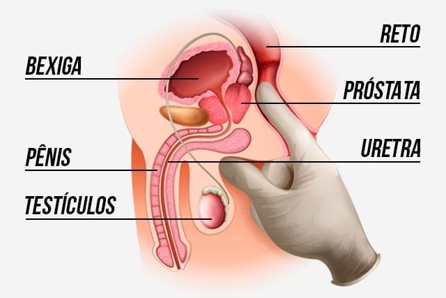 Visão Interna da Próstata